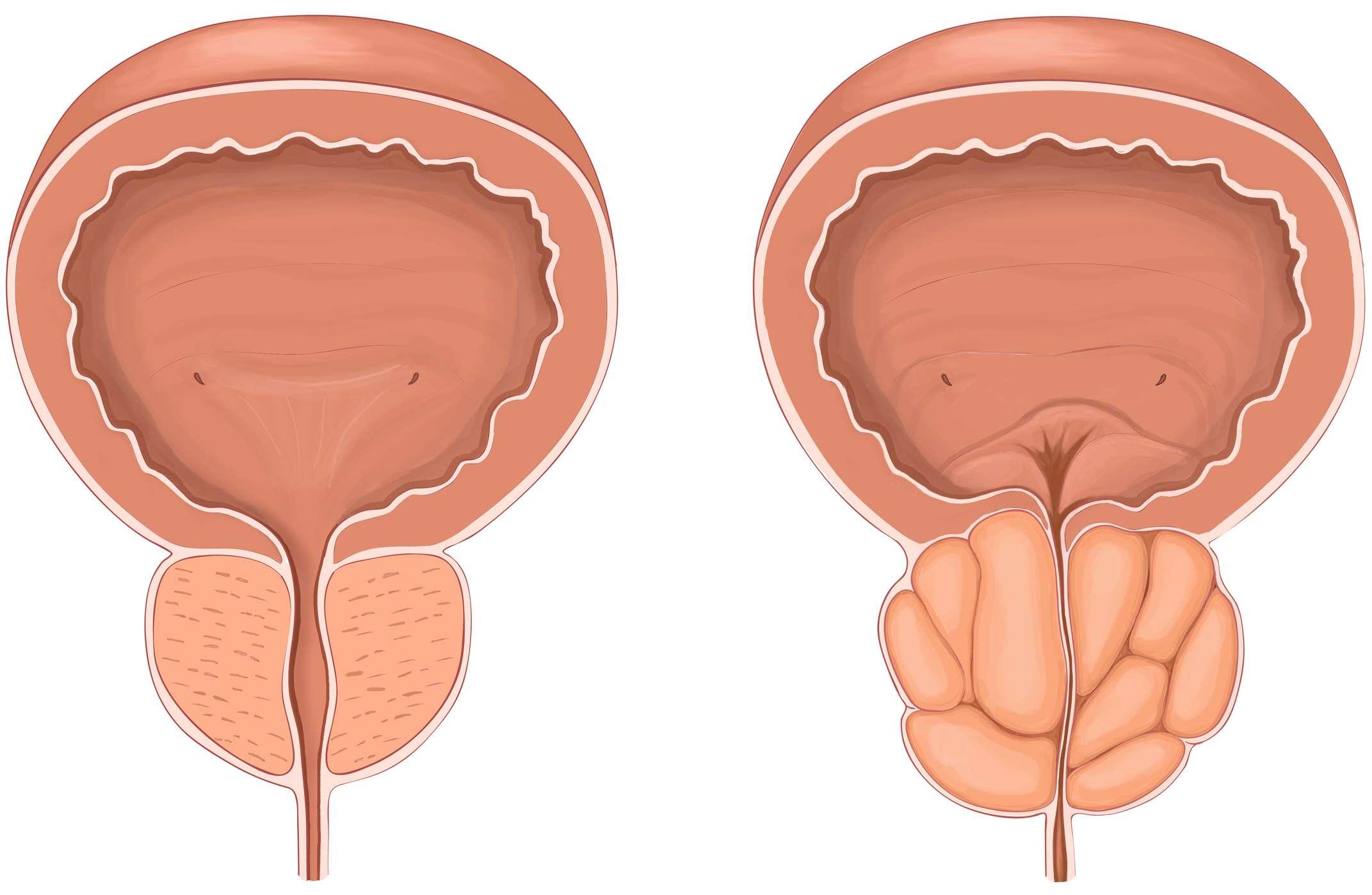 Qu'est-ce que l'hypertrophie de la prostate ?